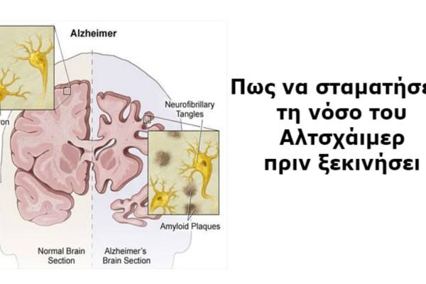 Η πρόληψη σώζει: 9+1 πράγματα που μπορείτε να κάνετε για να προλάβετε τη νόσο του Αλτσχάιμερ!