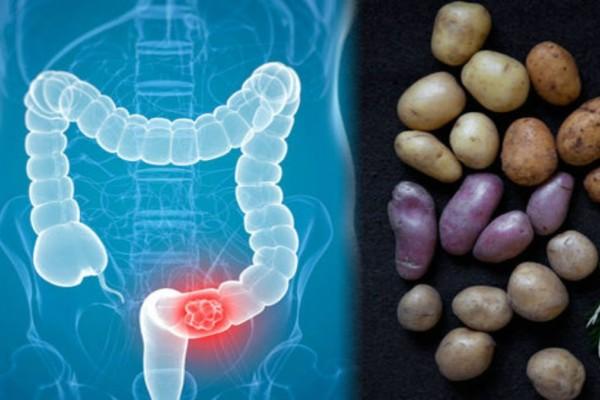 Καρκίνος παχέος εντέρου: Πώς συνδέεται με τις πατάτες που τρώτε