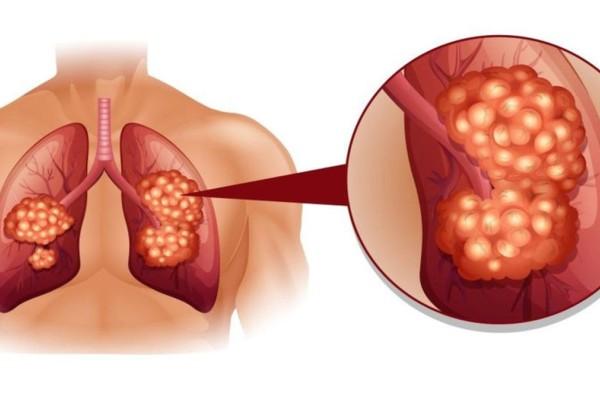 Δεν είναι μόνο το κάπνισμα: Αυτοί οι παράγοντες φέρνουν καρκίνο του πνεύμονα