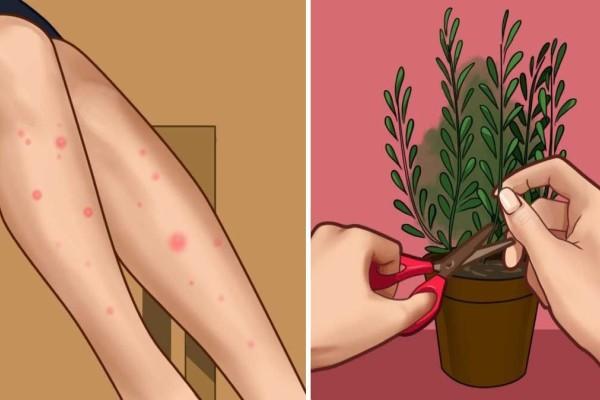 Όλα όσα πρέπει να γνωρίζετε για τα κουνούπια και πώς να τα κρατήσετε μακριά σας αυτό το καλοκαίρι