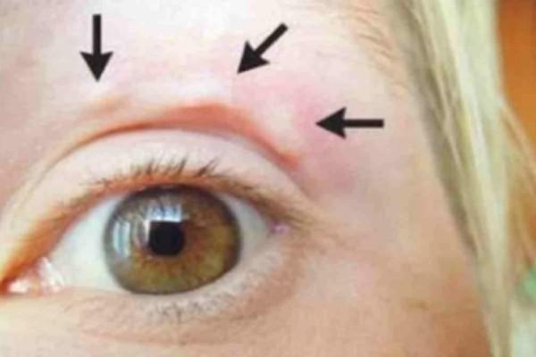 Βλέπετε αυτό το περίεργο «εξόγκωμα» στο μάτι της; Μόλις δείτε τι είναι θα πάθετε σοκ!