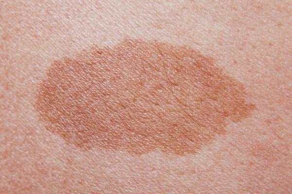 Μεγάλη προσοχή αν δείτε τέτοια σημάδια στο δέρμα σας! - Τι να κάνετε