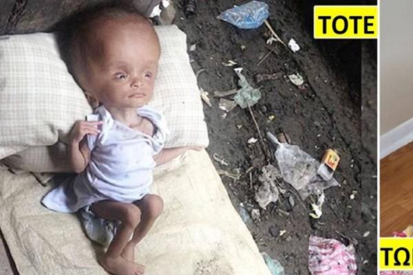 Άρρωστη μικρούλα που εγκαταλείφθηκε στα σκουπίδια για να πεθάνει, πήρε αγάπη και έγινε αγνώριστη χάρη στο «φύλακα άγγελό» της