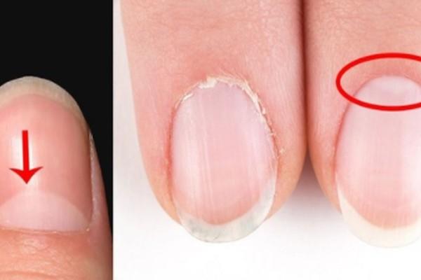 Αν έχετε αυτά τα άσπρα «μισοφέγγαρα» στα νύχια σας, τότε θα πρέπει οπωσδήποτε να διαβάσετε αυτό!