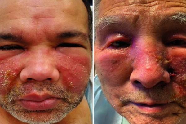 Φρικιαστική παρενέργεια ασθενών στο πρόσωπο μετά τον εμβολιασμό τους - Εξανθήματα, πρήξιμο και κοκκινίλες