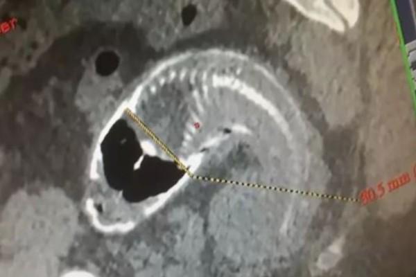 30χρονος είχε αφόρητους πόνους στο στομάχι - Αυτό που βρήκαν στο έντερό του σόκαρε τους γιατρούς