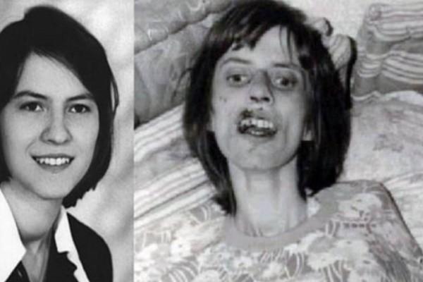 Πέθανε μετά από 67 συνεχόμενους εξορκισμούς. Η «υπόθεση της Ανελίζε» που αναστάτωσε τη Γερμανία και έγινε ταινία