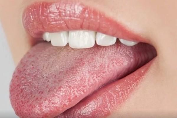 4+1 τροφές που καταναλώνουμε συνέχεια και ευθύνονται για τον καρκίνο της γλώσσας - Τρέξτε στο γιατρό με αυτά τα συμπτώματα
