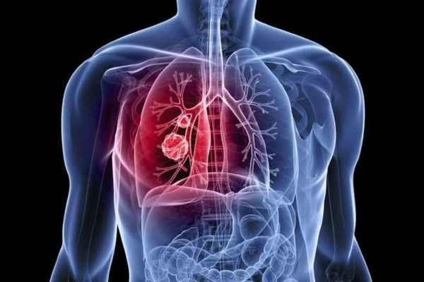 Καρκίνος του πνεύμονα: 7 + 1 σημάδια που πρέπει να γνωρίζετε