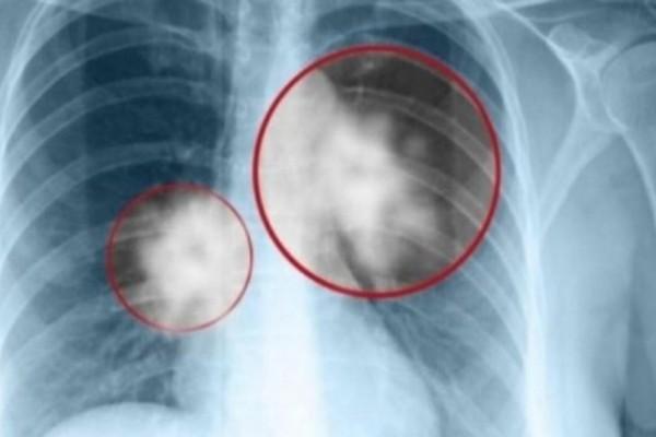 Καρκίνος του πνεύμονα: Αυτά είναι τα πρώτα σημάδια που θα πρέπει να σας ανησυχήσουν