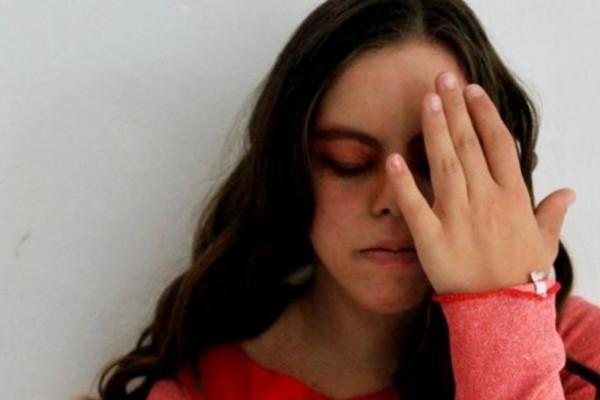 Λωξάντρα Λούκας: Η πρώτη ηθοποιός με σύνδρομο Down στην Ελλάδα