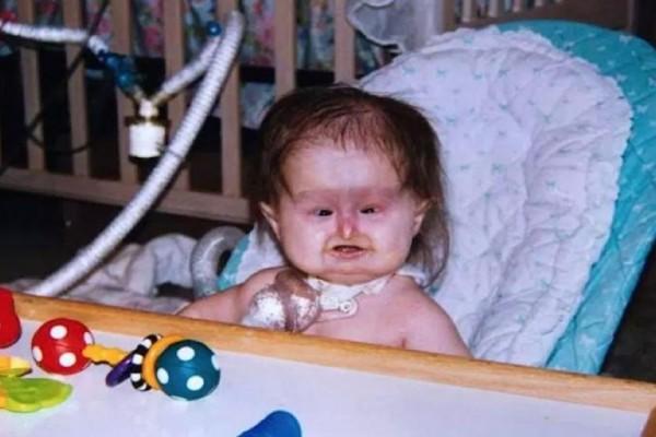 Το 1998 της είπαν να ρίξει το παιδί - Σήμερα είναι 20 xρονών και μοιάζει ακόμη με μωρό (Video)