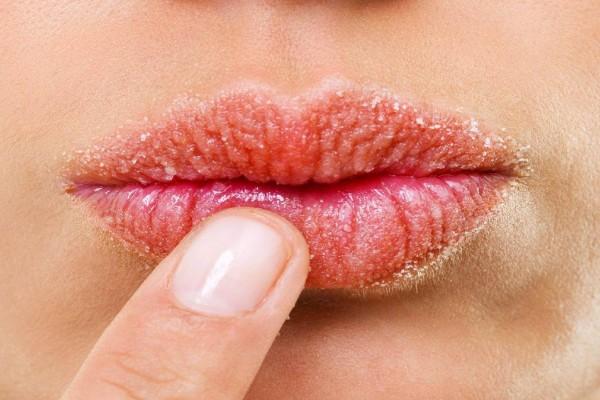 Ξηρά και σκασμένα χείλη; Απλές σπιτικές συνταγές για άμεση αντιμετώπιση