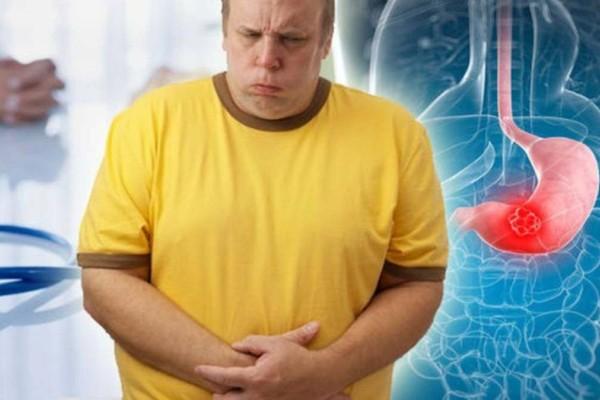 Καρκίνος του στομάχου: Αυτά είναι τα συμπτώματα που μπερδεύουμε με άλλες παθήσεις