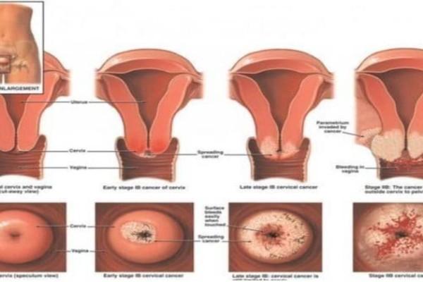 Καρκίνος αιδοίου και κόλπου: Κορίτσια αν έχετε αυτά τα συμπτώματα τρέξτε αμέσως στον γιατρό!