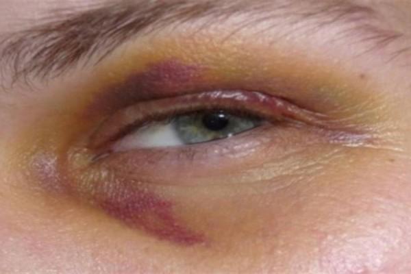 Το σαρδάμ και το μαυρισμένο μάτι: Το ανέκδοτο της ημέρας (16/9)
