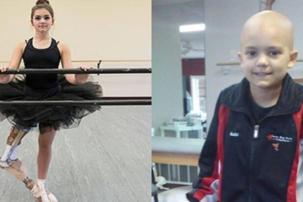 Έχασε το πόδι της από καρκίνο και σήμερα χορεύει ξανά: Η ιστορία μιας 15χρονης μπαλαρίνας