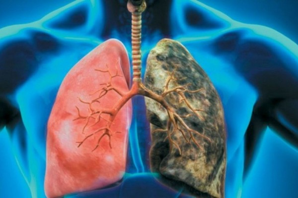 Προσοχή! Ο καρκίνος του πνεύμονα συχνά ΔΕΝ παρουσιάζει συμπτώματα