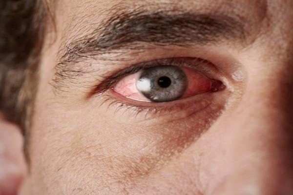 Καρκίνος στα μάτια: Προσοχή! Αυτά είναι τα συμπτώματα και οι παράγοντες κινδύνου