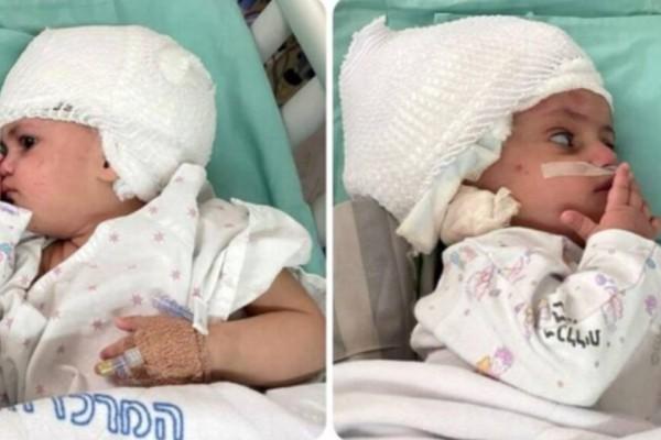 Τα μωρά αυτά το 2020 γεννήθηκαν σιαμαία: Σήμερα κοιτάζονται για πρώτη φορά στα μάτια!