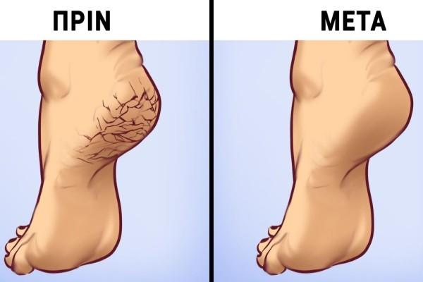 Φλούδες λεμονιού για τη θεραπεία των ποδιών σας - Το τέλειο απολεπιστικό!
