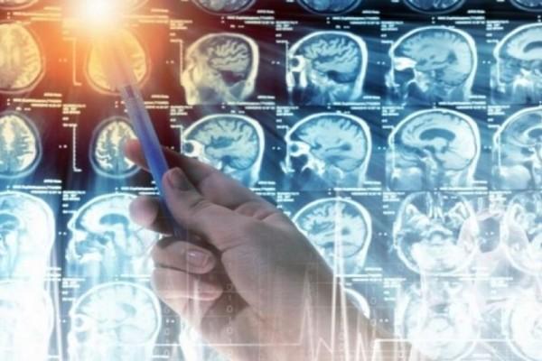 Σώζει ζωές: Αυτό το χάπι «σκοτώνει» τον όγκο στον εγκέφαλο