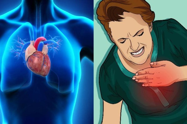 Σώζει ζωές: Τι κάνουμε σε περίπτωση εμφράγματος - Οι πρώτες βοήθειες σε μια καρδιακή προσβολή