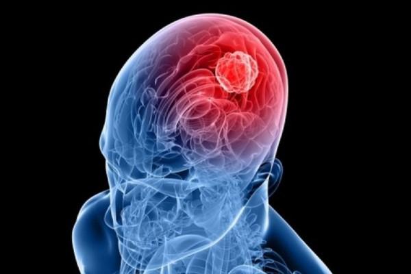 Τέλος ο καρκίνος: Αυτό το χάπι «σκοτώνει» τον όγκο στον εγκέφαλο