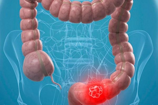 3+1 τροφές που... κάνουν πέρα τον καρκίνο του παχέος εντέρου