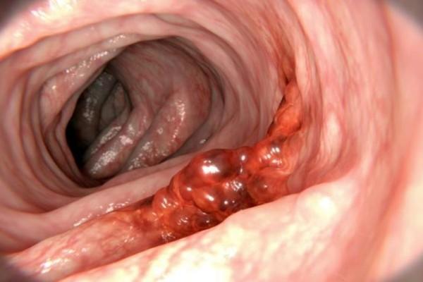 Καρκίνος εντέρου: Αυτή η τροφή σκοτώνει το 75% των όγκων
