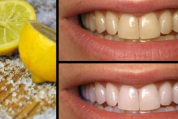 Λεμόνι το θαυματουργό: 2 τρόποι για να αντιμετωπίσετε όλα τα προβλήματα με τα δόντια σας