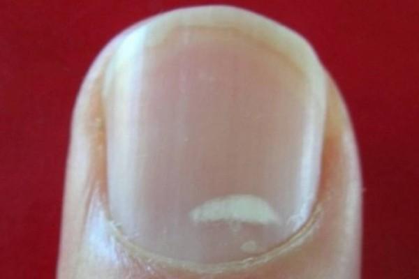 Τελικά, τι είναι αυτά τα λευκά σημάδια στα νύχια μας;