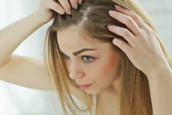 Χάνετε τα μαλλιά σας; Αυτή η τροφή θα σας σώσει