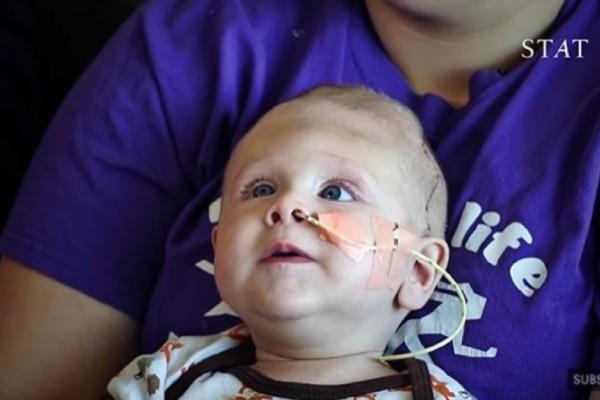 Περίμεναν να θάψουν το μωρό τους αμέσως μετά τη γέννα - Αν προσέξετε όμως τι κρύβεται στα μαλλιά του θα πιστέψετε στα θαύματα (Video)