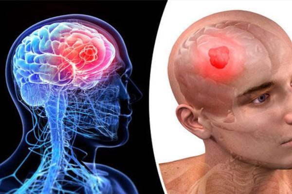 Καρκίνος στο κεφάλι: Προσοχή στα ένοχα συμπτώματα!