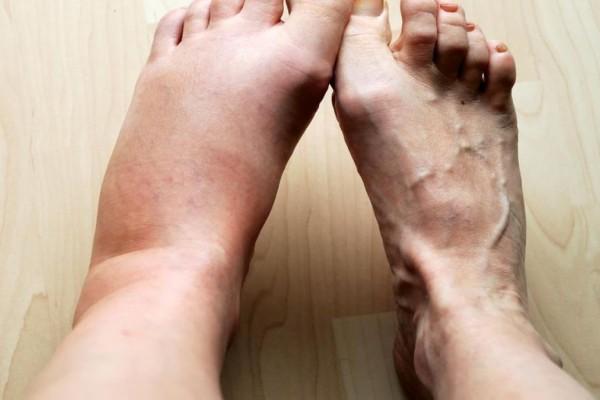 Προσοχή: Αν δείτε αυτά τα σημάδια στα πόδια σας, τρέξτε αμέσως στο γιατρό!
