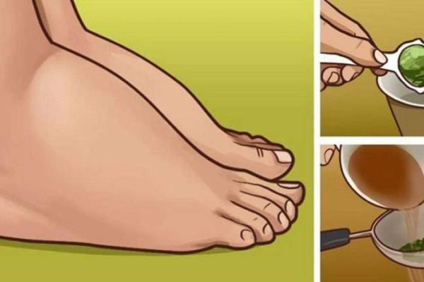 Το πιο ισχυρό φυσικό φάρμακο για πρησμένα πόδια και αστραγάλους