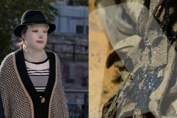 Ιωάννα Παλιοσπύρου: Σοκάρουν οι φωτογραφίες από τα ρούχα που φορούσε την ημέρα της επίθεσης με βιτριόλι