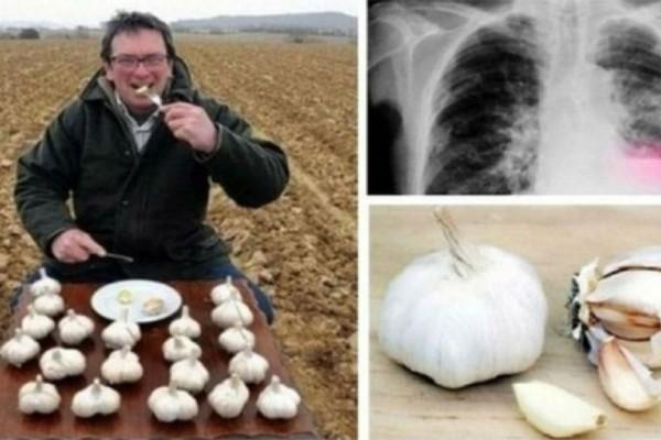 Έτρωγε κάθε πρωί δύο σκελίδες σκόρδο με άδειο στομάχι - Ένα μήνα μετά...