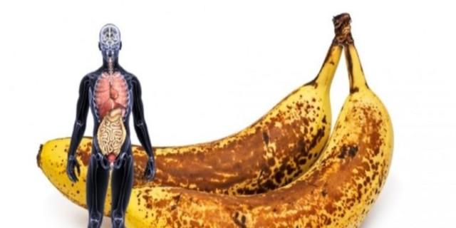Σοκ με μπανάνες: Σε ποια περίπτωση μπορεί να προκαλέσει θάνατο