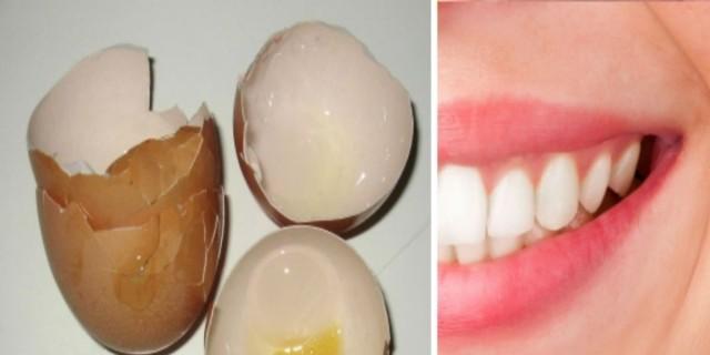 Έβαλε τσόφλια αυγών στα δόντια της - Απαλλάχθηκε από ένα συχνό πρόβλημα