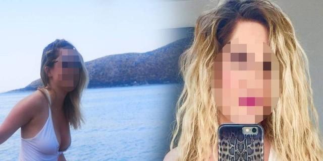Σοκάρει η εικόνα της 34χρονης μετά την επίθεση με βιτριόλι: Στο πρόσωπό της δεν...