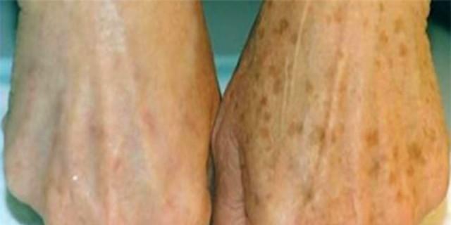 Διώξτε τα σημάδια γήρανσης στα χέρια με ξύδι - Ο πιο απλός τρόπος