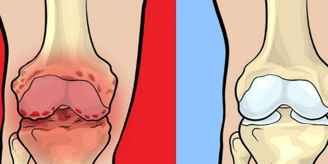 Προσοχή: 8 τροφές που απαγορεύεται να τρώτε αν έχετε πόνο στις αρθρώσεις