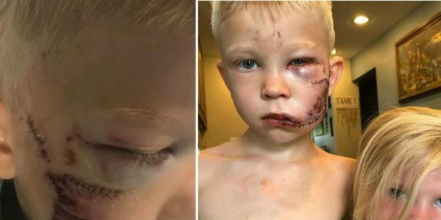 6χρονο αγοράκι παραμορφώθηκε για να σώσει την αδερφούλα του από εξαγριωμένο σκύλο (photos)