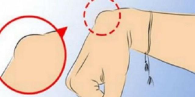 Εάν βλέπετε και εσείς αυτό στο χέρι σας σταματήστε αυτό που κάνετε και καλέστε ένα γιατρό!