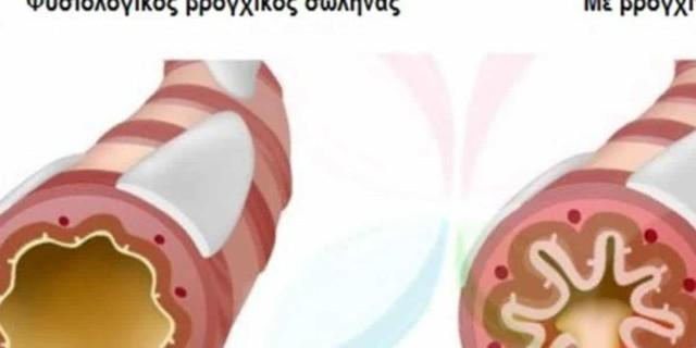 10 τροφές που καταπολεμούν το άσθμα και κάνουν καλό στην υγεία