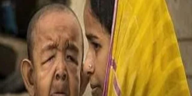 Δείχνει για 80 ετών και είναι... «Δεν αντέχω, είναι σαν εξωγήινος», λέει η μητέρα του (photo-video)