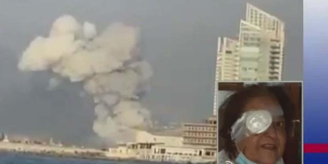 Έκρηξη στη Βηρυτό: «Έχασα το μάτι μου στην έκρηξη» - Συγκλονίζει η μαρτυρία Ελληνίδας τραυματία (Video)