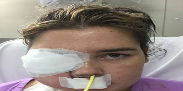 22χρονη έχασε το μισό της πρόσωπο από καρκίνο - Ωστόσο δεν το έβαλε κάτω καθώς...